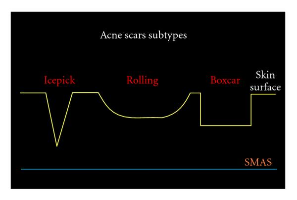 "Acne scars subtypes, from: Gabriella Fabbrocini, M. C. Annunziata, V. D'Arco, et al., ""Acne Scars: Pathogenesis, Classification and Treatment,"" Dermatology Research and Practice, vol. 2010, Article ID 893080, 13 pages, 2010. doi:10.1155/2010/893080 (accessed through: https://www.hindawi.com/journals/drp/2010/893080/)."
